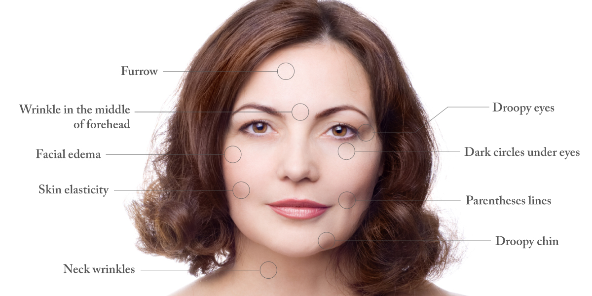 woman smiling facial acupuncture