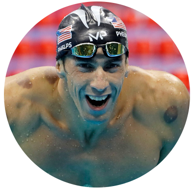 swimmer michael phelps sports acupuncture